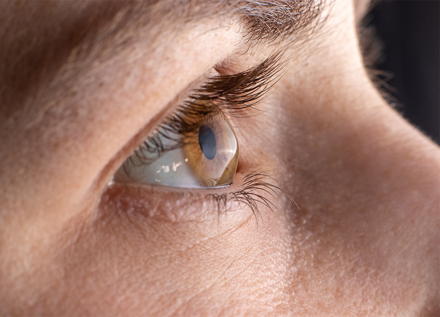 What is Keratoconus and Can it Be Treated by Laser Eye Surgery